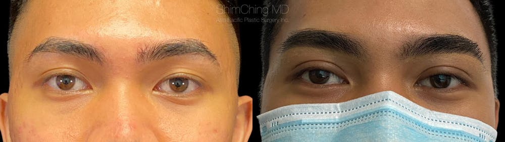 Eyelid Surgery Gallery - Patient 38290604 - Image 1