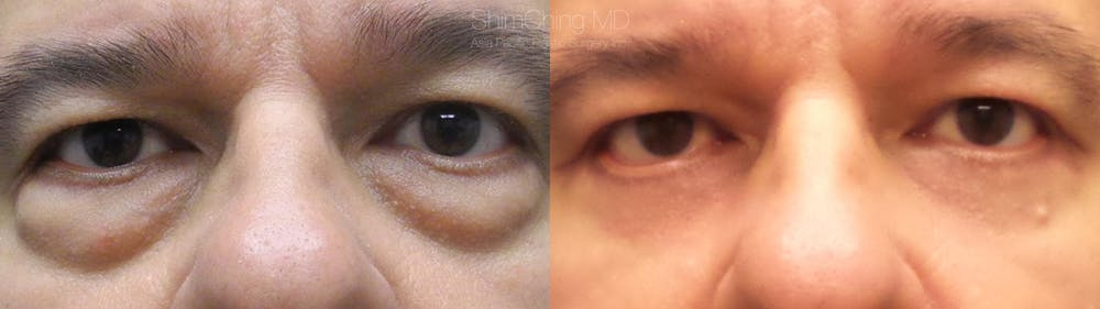 Eyelid Surgery Gallery - Patient 38290606 - Image 1