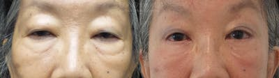 Eyelid Surgery Gallery - Patient 38290610 - Image 1