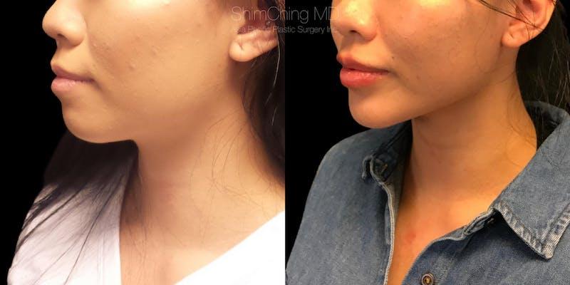 Chin Surgery
