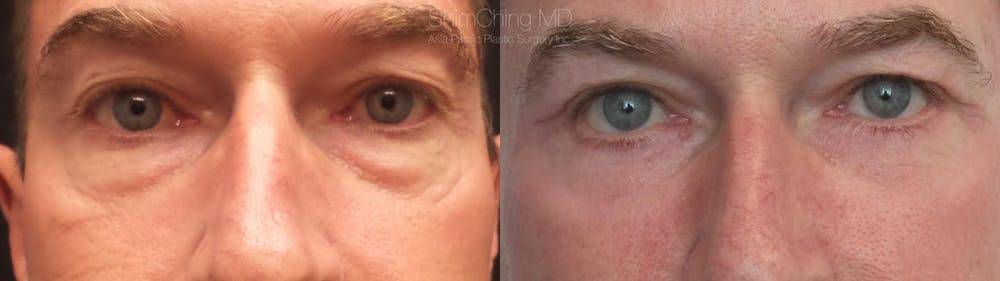Eyelid Surgery Gallery - Patient 38290615 - Image 1