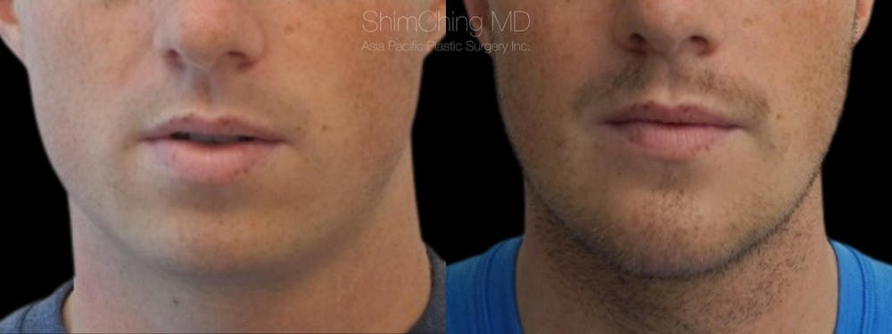 Chin Gallery - Patient 38290616 - Image 2