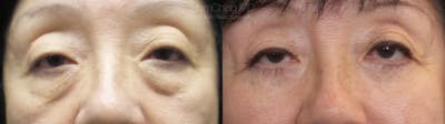 Eyelid Surgery Gallery - Patient 38290618 - Image 1