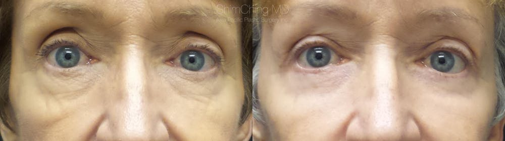 Eyelid Surgery Gallery - Patient 38290621 - Image 1