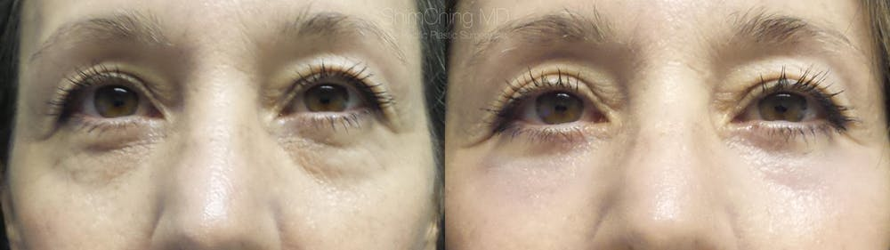 Eyelid Surgery Gallery - Patient 38290624 - Image 1