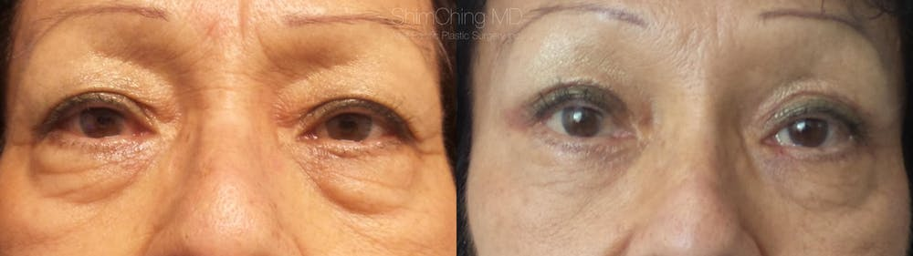 Eyelid Surgery Gallery - Patient 38290626 - Image 1
