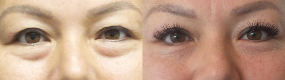 Eyelid Surgery Gallery - Patient 38290628 - Image 1