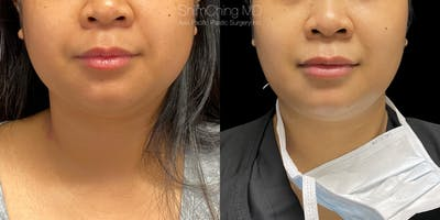 Buccal Fat Removal Gallery - Patient 38290648 - Image 1