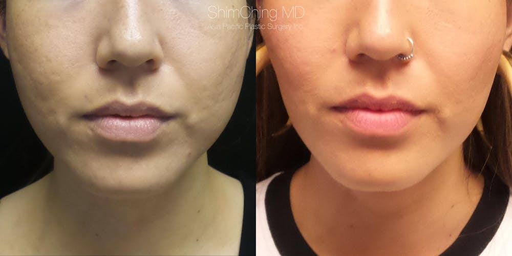 Buccal Fat Removal Gallery - Patient 38290652 - Image 1