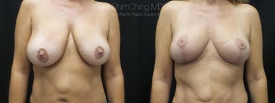 Breast Lift Gallery - Patient 38290659 - Image 1