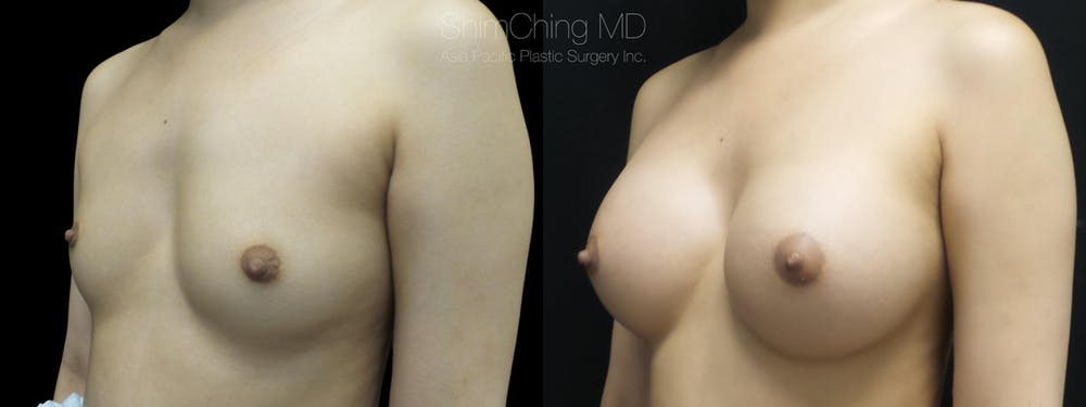 Breast Augmentation Gallery - Patient 38290662 - Image 1