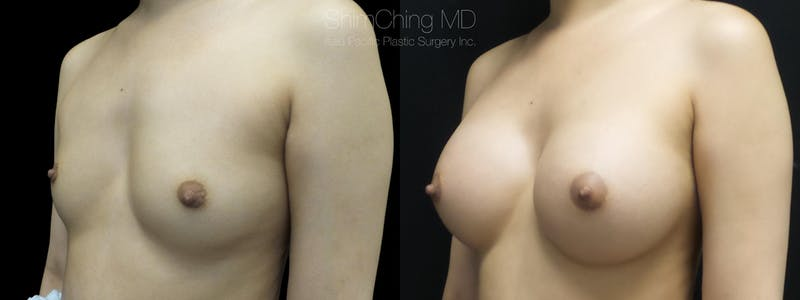 Before and after Breast Augmentation in Honolulu with Dr. Shim Ching