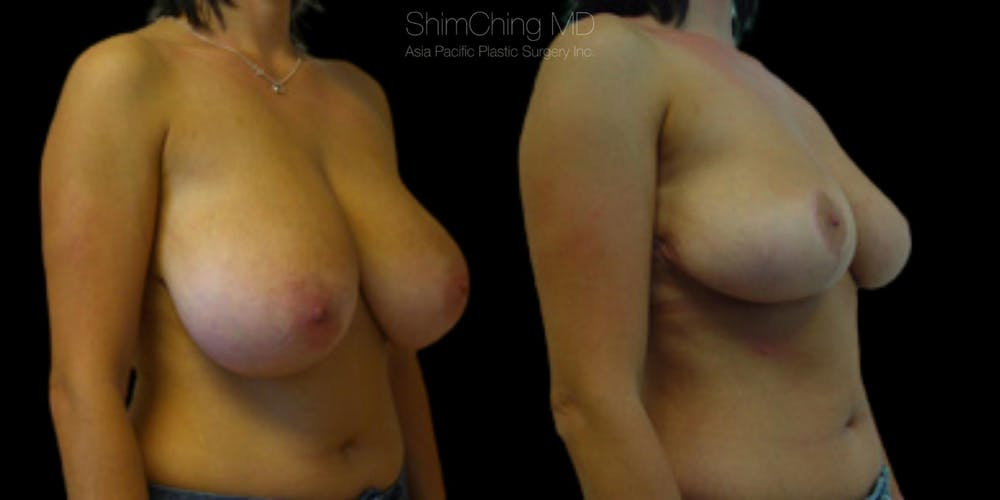 Breast Lift Gallery - Patient 38290663 - Image 3