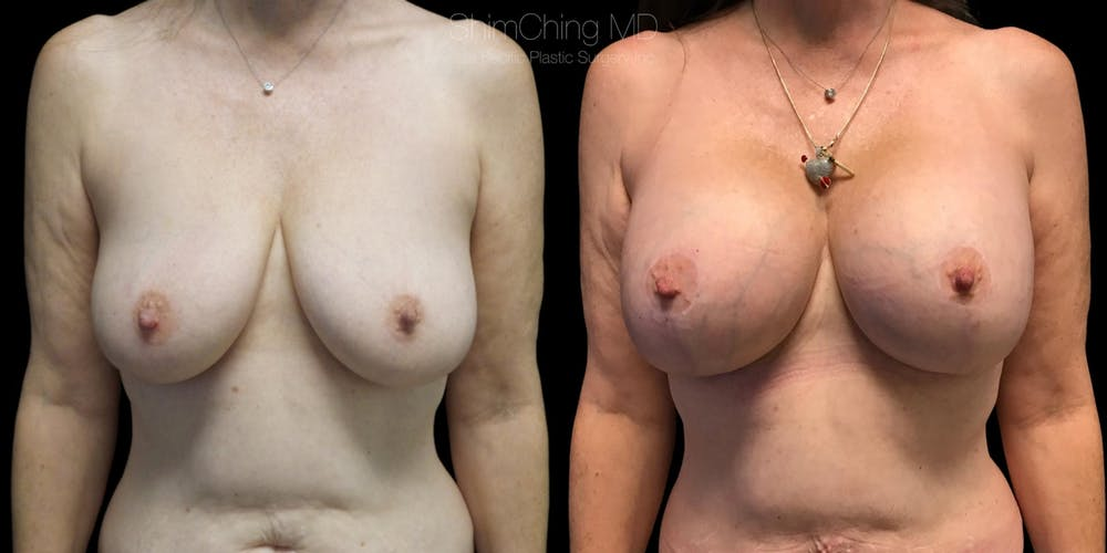 Breast Lift with Implants Gallery - Patient 38290664 - Image 1