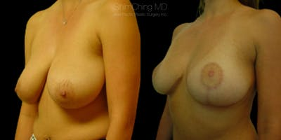 Breast Lift Gallery - Patient 38290667 - Image 2