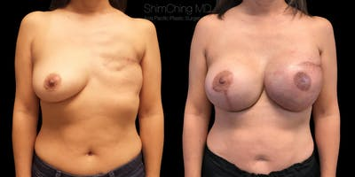 Breast Reconstruction Gallery - Patient 38290669 - Image 1