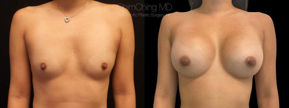 Breast Augmentation Gallery - Patient 38290670 - Image 1