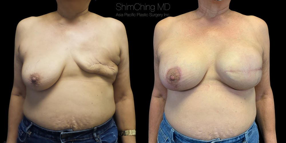 Breast Reconstruction Gallery - Patient 38290671 - Image 1