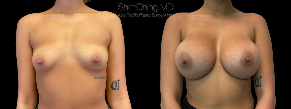 Breast Augmentation Gallery - Patient 38290672 - Image 1