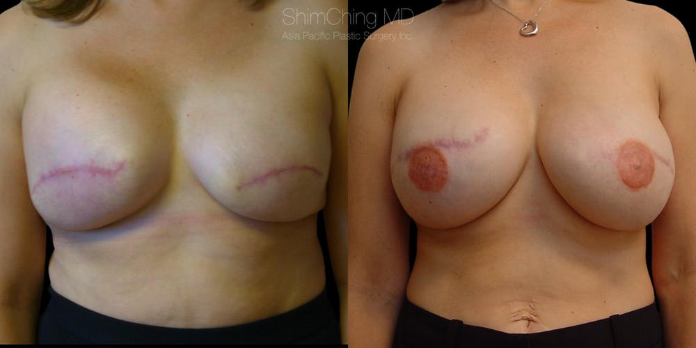 Breast Reconstruction Gallery - Patient 38290673 - Image 1