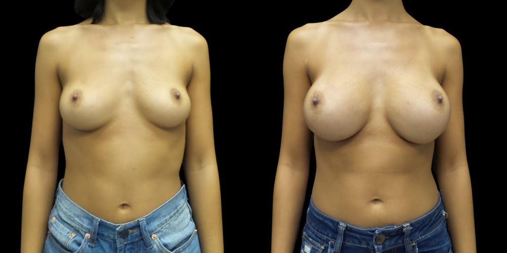 Breast Augmentation Gallery - Patient 38290678 - Image 1