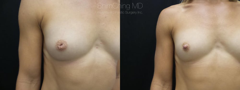 Inverted Nipple Correction Gallery - Patient 38290682 - Image 3