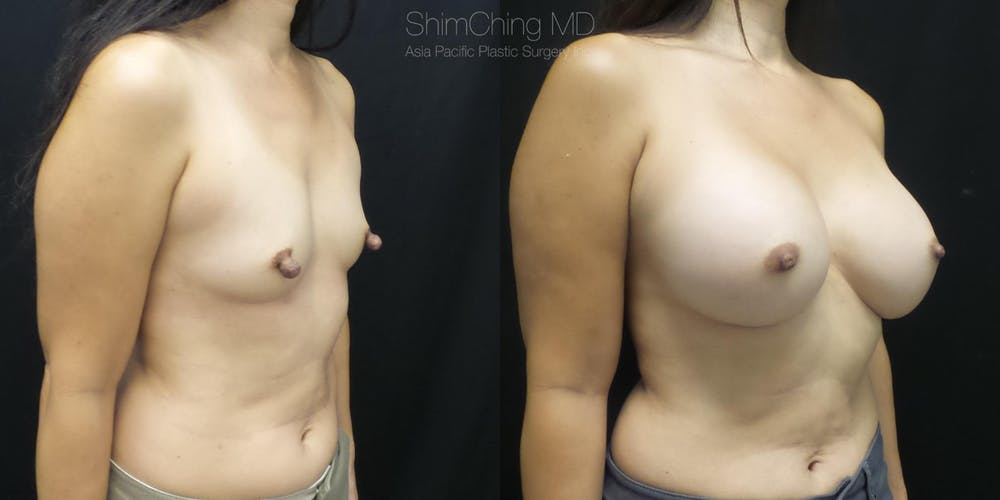 Nipple Reduction Gallery - Patient 38290687 - Image 1