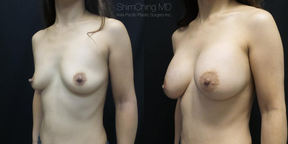 Nipple Reduction Gallery - Patient 38290690 - Image 1
