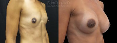 Nipple Reduction Gallery - Patient 38290695 - Image 1