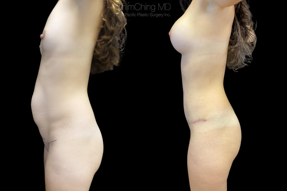 Abdominoplasty Gallery - Patient 38298970 - Image 1