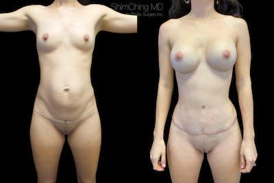 Abdominoplasty Gallery - Patient 38298970 - Image 2