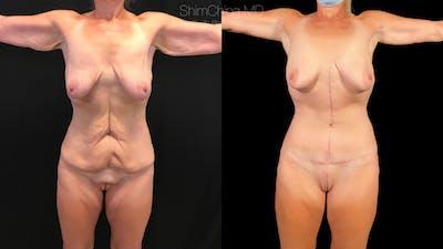 Abdominoplasty Gallery - Patient 38298975 - Image 1