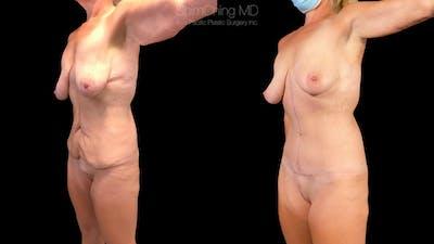 Abdominoplasty Gallery - Patient 38298975 - Image 2