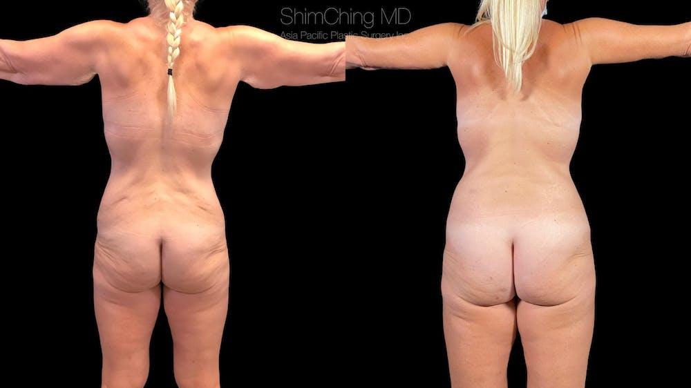 Abdominoplasty Gallery - Patient 38298975 - Image 3