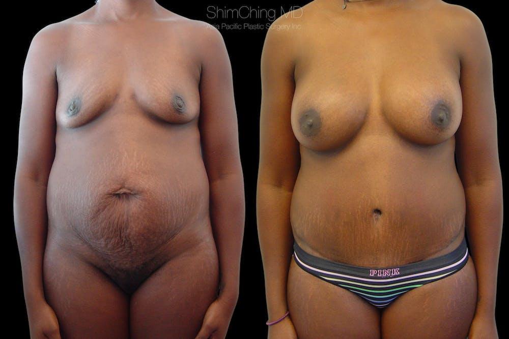 Abdominoplasty Gallery - Patient 38298983 - Image 1
