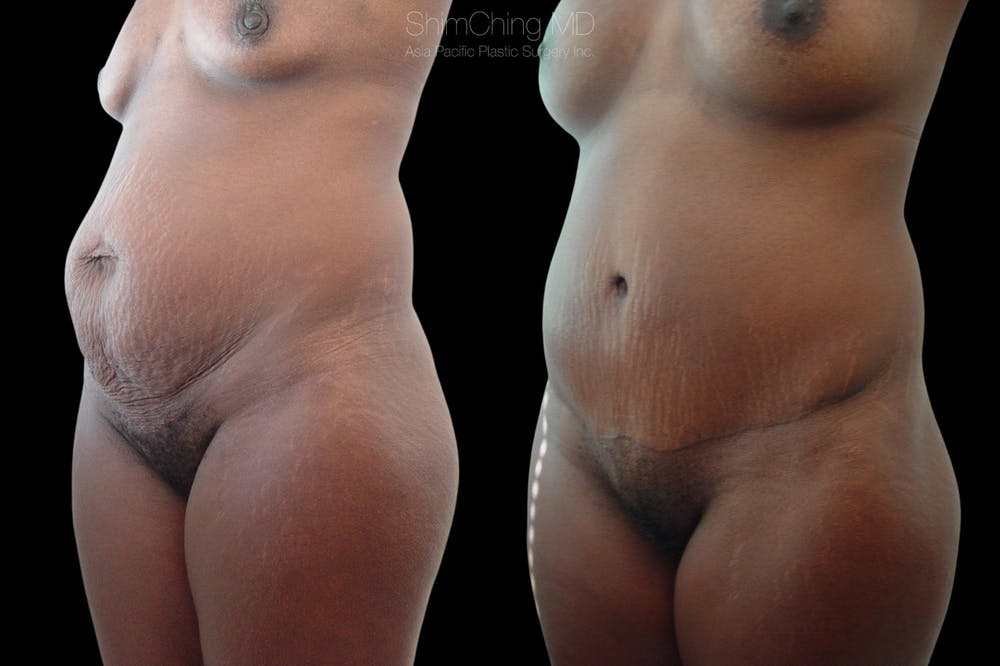 Abdominoplasty Gallery - Patient 38298983 - Image 2