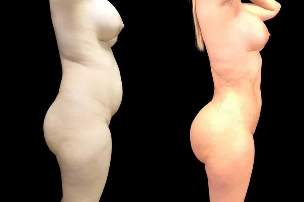 Brazilian Butt Lift Gallery - Patient 38298984 - Image 1