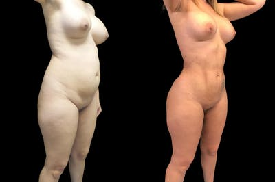 Brazilian Butt Lift Gallery - Patient 38298984 - Image 2