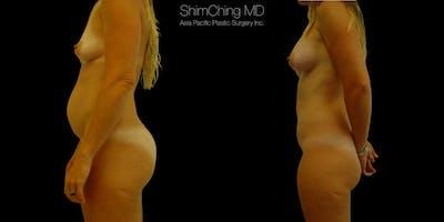 Abdominoplasty Gallery - Patient 38298986 - Image 2