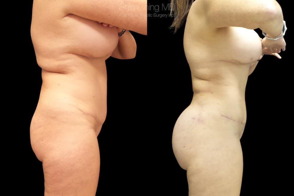 Brazilian Butt Lift Gallery - Patient 38298990 - Image 2