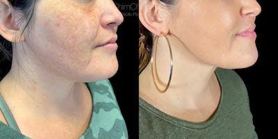 Laser Liposuction Gallery - Patient 38298994 - Image 2