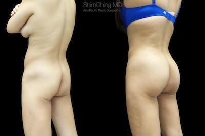 Brazilian Butt Lift Gallery - Patient 38298993 - Image 1