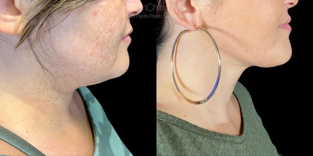 Laser Liposuction Gallery - Patient 38298994 - Image 3