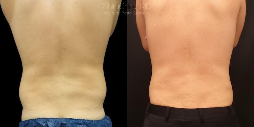 Laser Liposuction Gallery - Patient 38298995 - Image 1