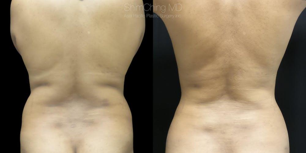 Laser Liposuction Gallery - Patient 38298998 - Image 1