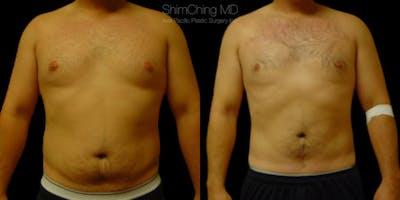 Laser Liposuction Gallery - Patient 38298999 - Image 1