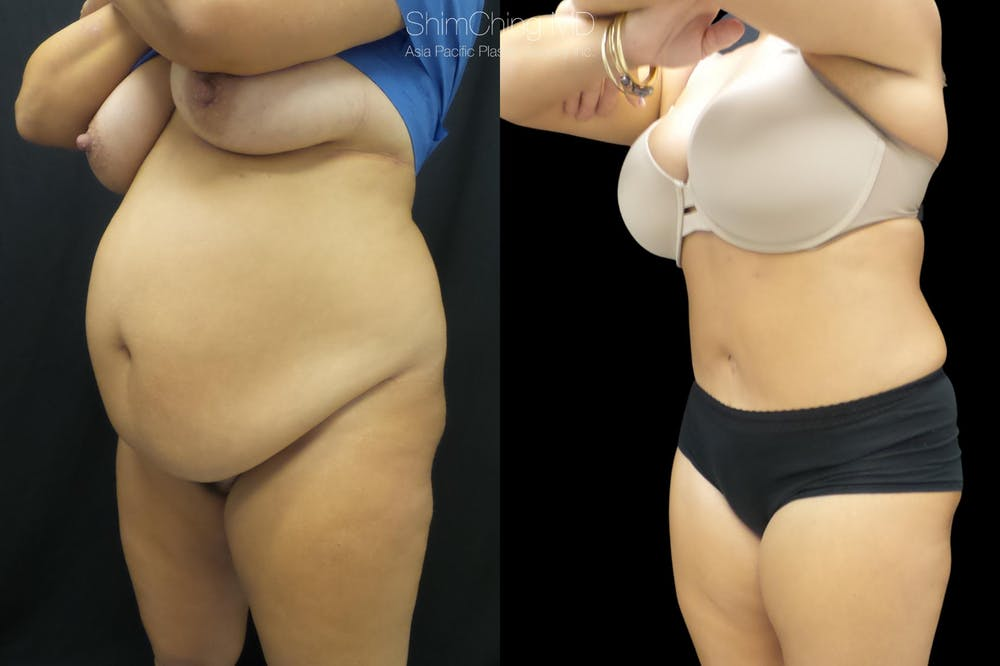 Mommy Makeover Gallery - Patient 38299003 - Image 1