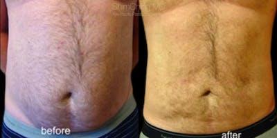 Laser Liposuction Gallery - Patient 38299002 - Image 1