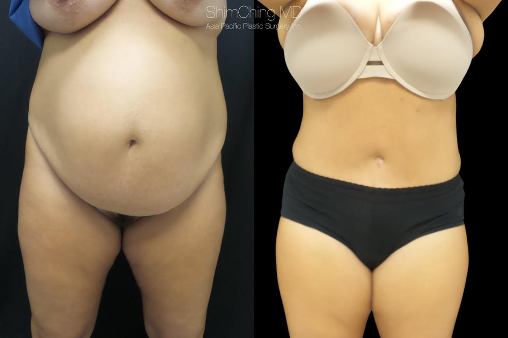 Mommy Makeover Gallery - Patient 38299003 - Image 3