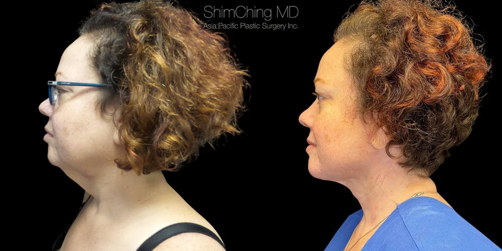 Post-Bariatric Body Contouring Gallery - Patient 38299004 - Image 1